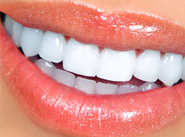Guatemala Dentists, Dental Cosmetics, Female Smile