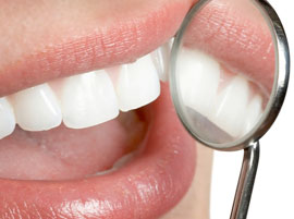 Guatemala Dental Specialists, Teeth Whitening