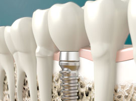 Dentists Guatemala, Dental Implants