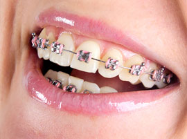 Guatemala Orthodontics