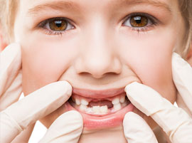 Pediatric Dentistry in Guatemala