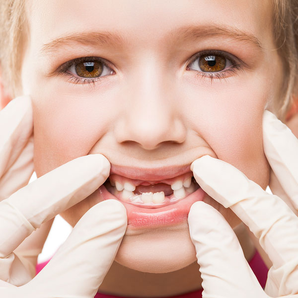 Guatemala Pediatric Dentistry, dentist examining teeth child