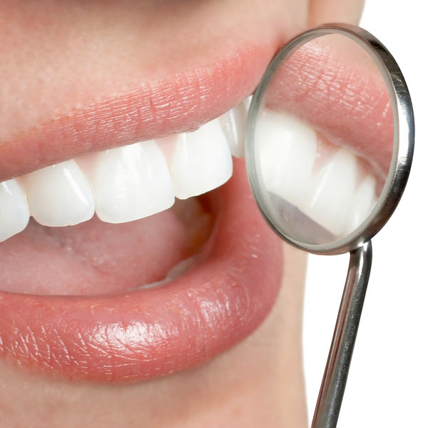 Dental Cleaning Guatemala