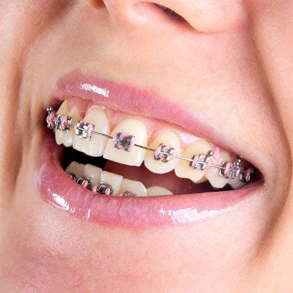Guatemala Orthodontics, Braces