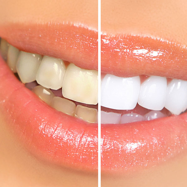Guatemala Teeth Whitening